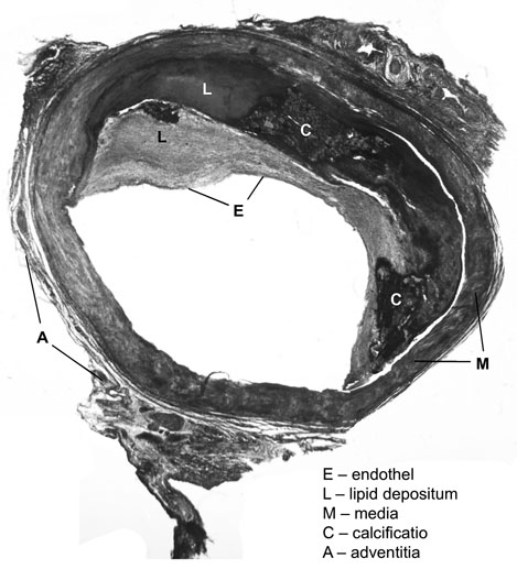 ha a toxoplazma megemelkedik